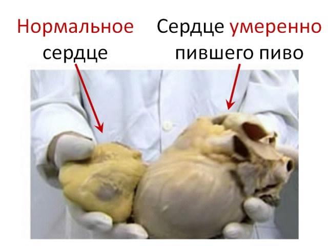 Лечение алкоголизма: Подольск и Московская
